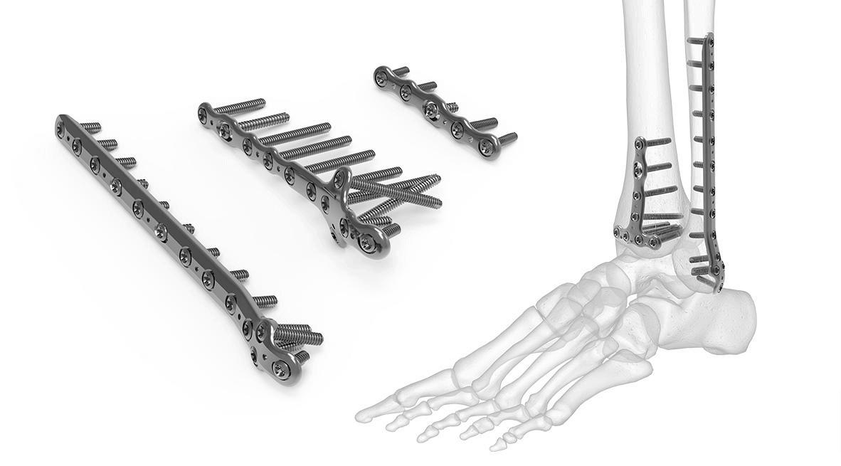 Different Types of Orthopedic Bone Plates