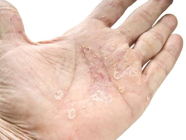 What Is Psoriasis? Know-How You Can Stop