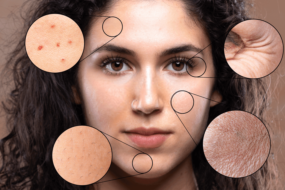 Healthy Foods That Can Improve Your Skin Health