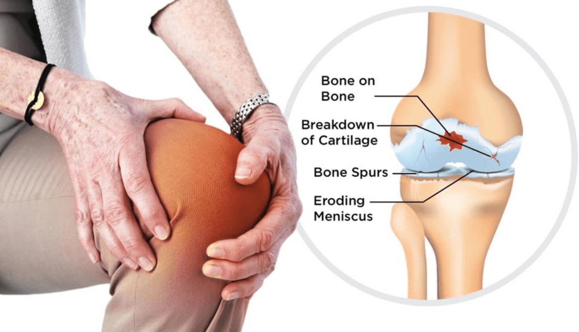 Get The Affordable Knee Replacement Package.